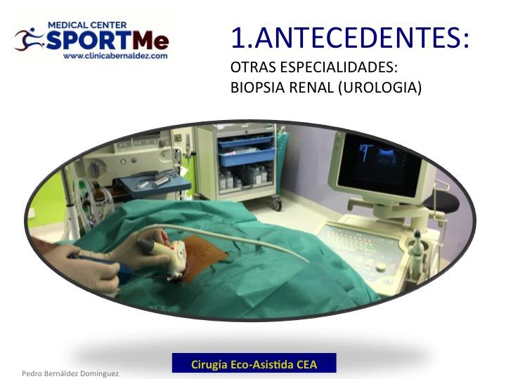 la-cirugia-eco-asistida-cea-antecedentes