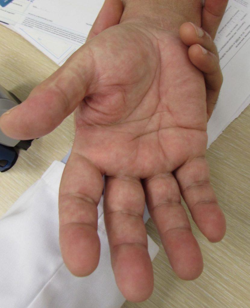 Artrodesis, fijar una articulación no es el fin del mundo