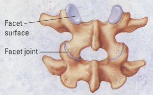 Lumbalgia o dolor de la espalda baja, una epidemia de este siglo