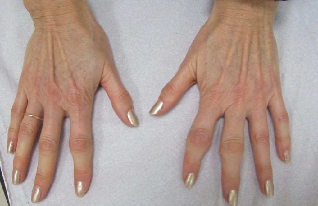 artrosis dedos mano 06