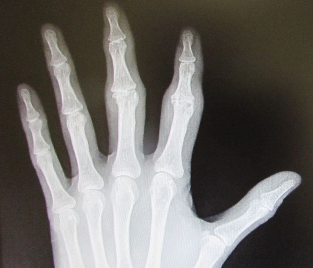 Artrosis de mano. Dolor de dedos y debilidad, como mejorarla