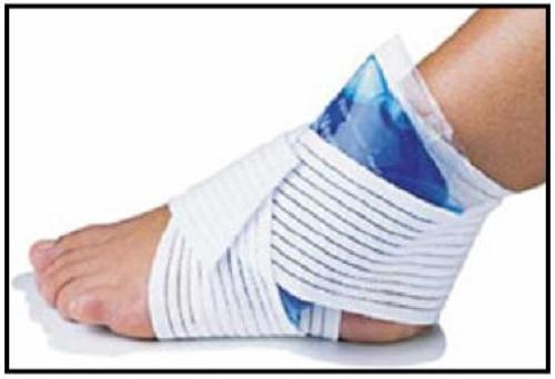 Esguince de tobillo, diagnostico y tratamiento sin escayola.