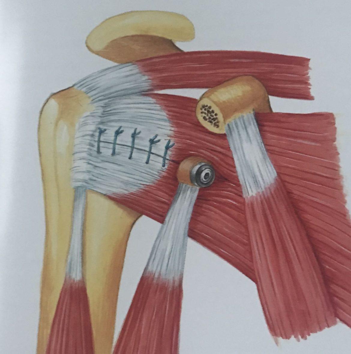 Tecnica de Latarjet para las inestabilidades de hombro tras fracaso del  bankart artroscopico 849301261e59