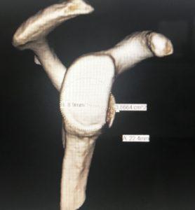 cirugia de latarjet dr bernaldez 16