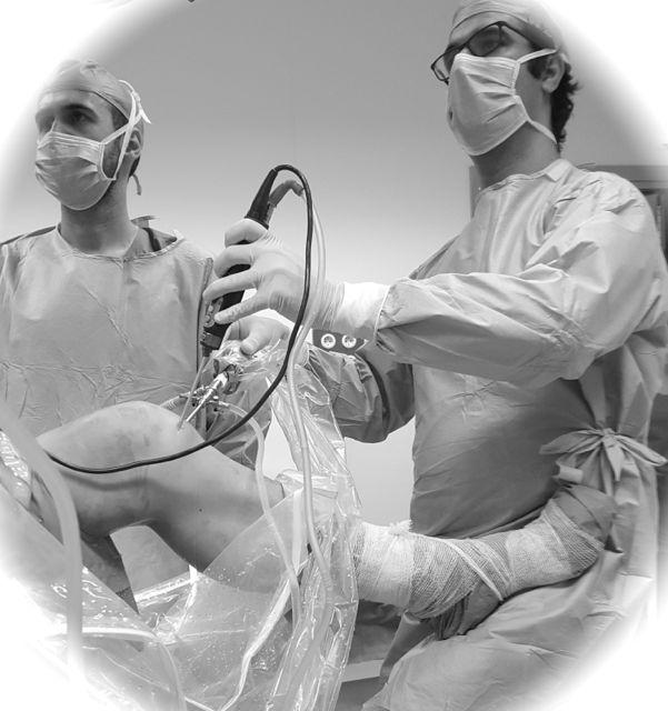 Rotura meniscal: ¿hay que operarlas siempre?