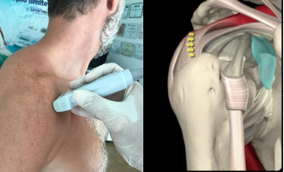 12 ecografia de hombro eje corto y largo nos permite ver la anatomia normal diagnosticar un gran numero de patologias