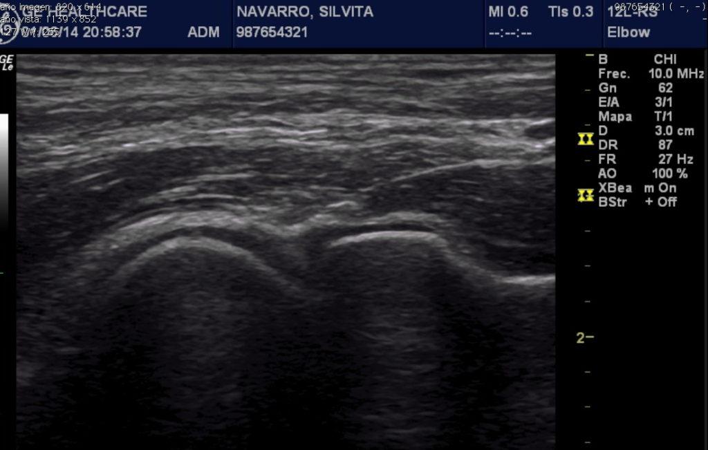 2 cara anterior de la articulacion radio capitelar