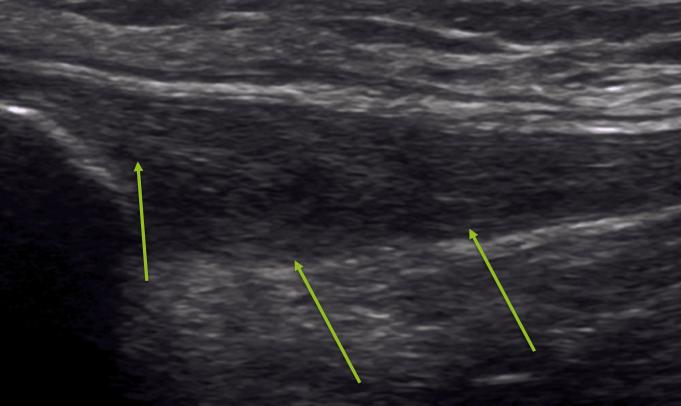 7 imagen hipoecogenica en la porcion adyacente a la insercion proximal del tendon rotuliano con engrosamiento del tendon a ese nivel