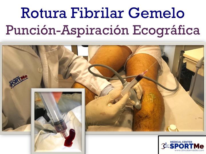 Importancia de la Ecografia MSK en lesiones musculares, tendones, ligamentos, partes blandas y óseas