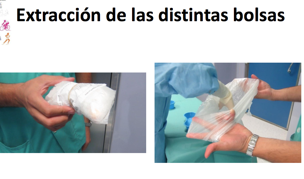 Transplante Meniscal Rodilla.