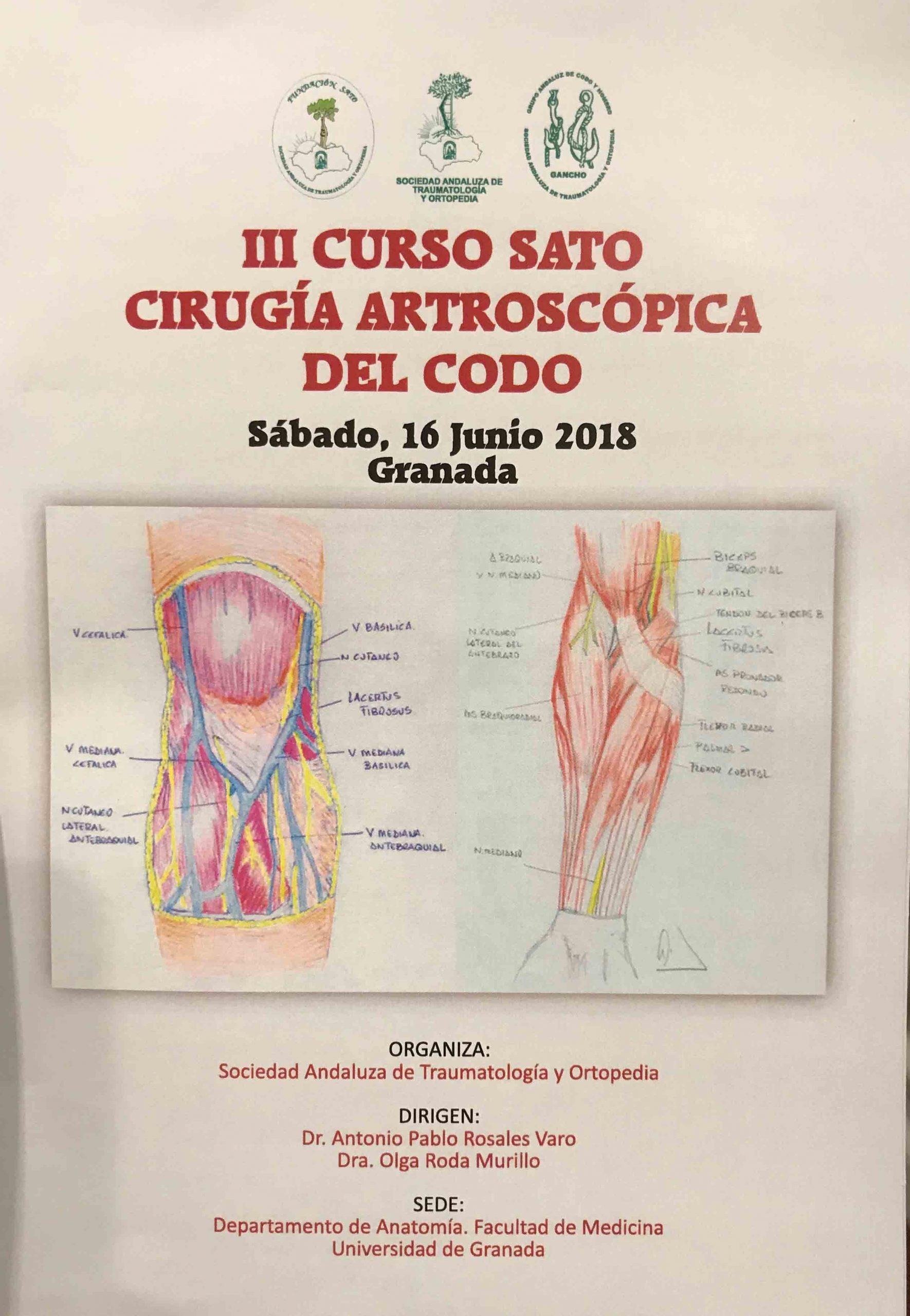 CRONICA III CURSO DE CIRUGIA ARTROSCOPICA DEL CODO DE LA SOCIEDAD ANDALUZA DE TRAUMATOLOGÍA Y ORTOPEDIA.