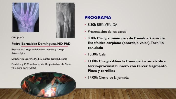 programa III JORNADAS QUIRURGICAS SPORTME PSEUDOARTROSIS.
