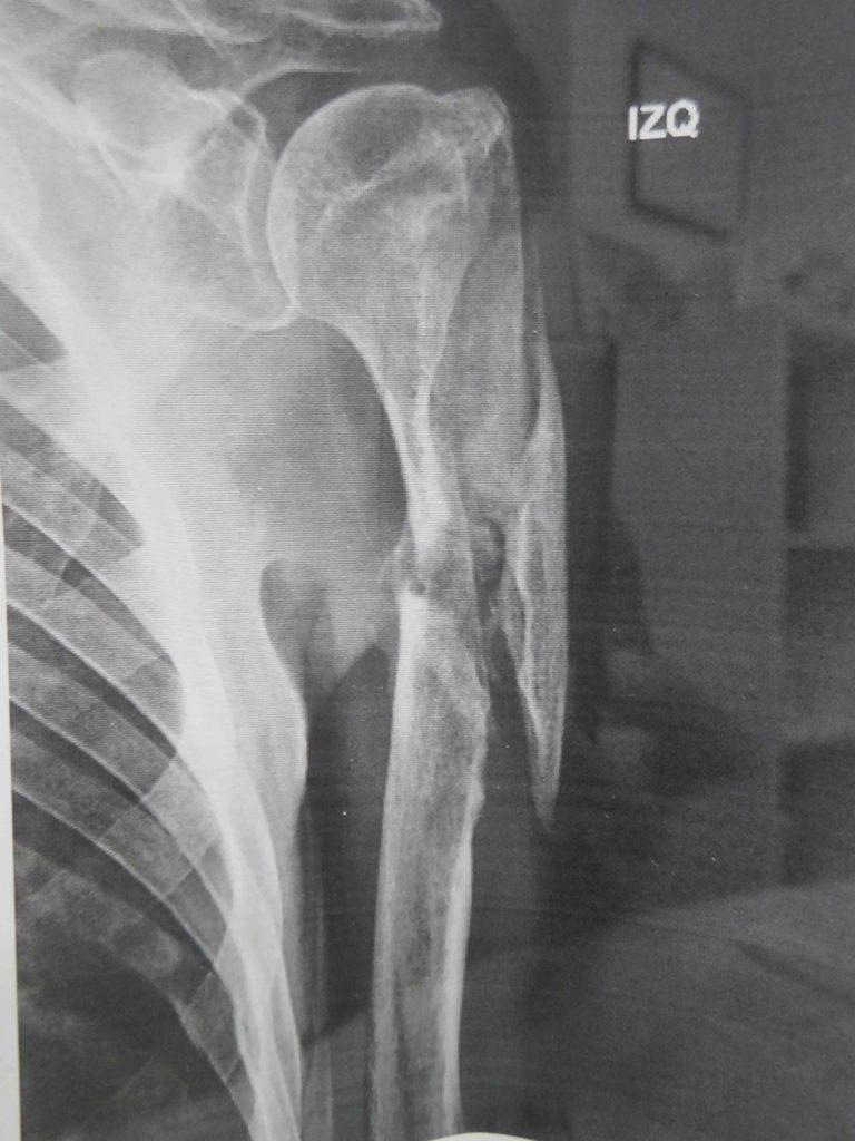pseudoartrosis de humero dr bernaldez