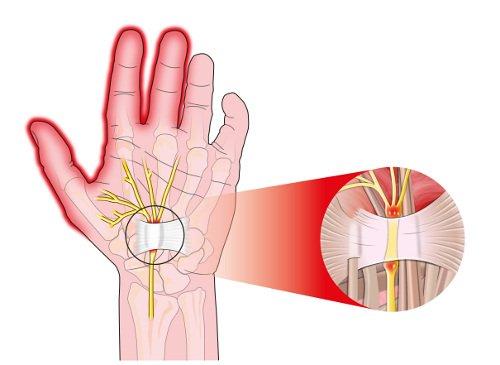 Cuidados postoperatorios tras cirugía del túnel carpiano