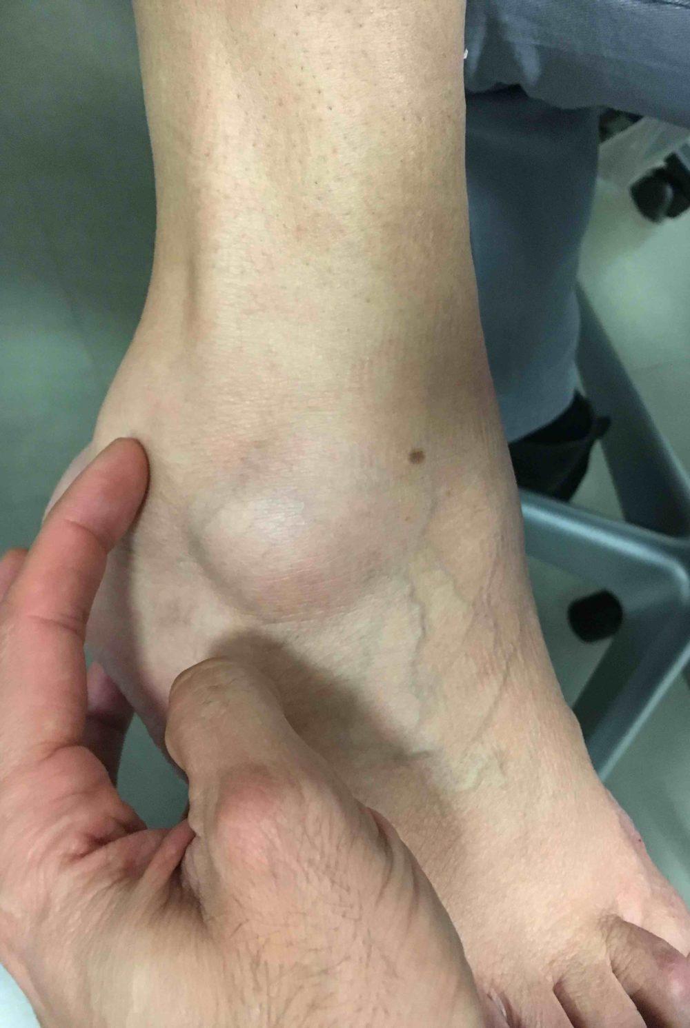 Tendinitis o Tenosinovitis de los peroneos. Dolor cara lateral tobillo