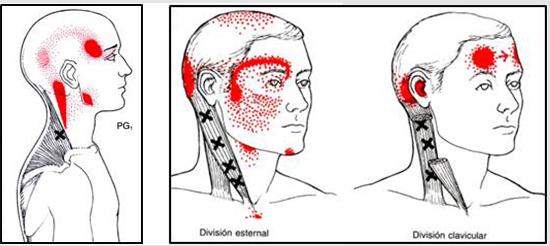 zona cervical punto gatillo