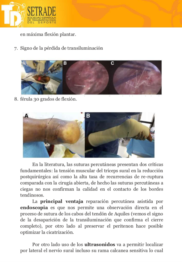Acute Achilles Tendon Rupture Ultrasonography and Endoscopy Assisted Percutaneous Repair 3