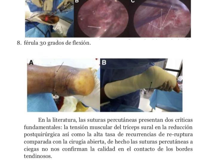 Comentario de artículo científico por parte del Dr Bernáldez para la SETRADE