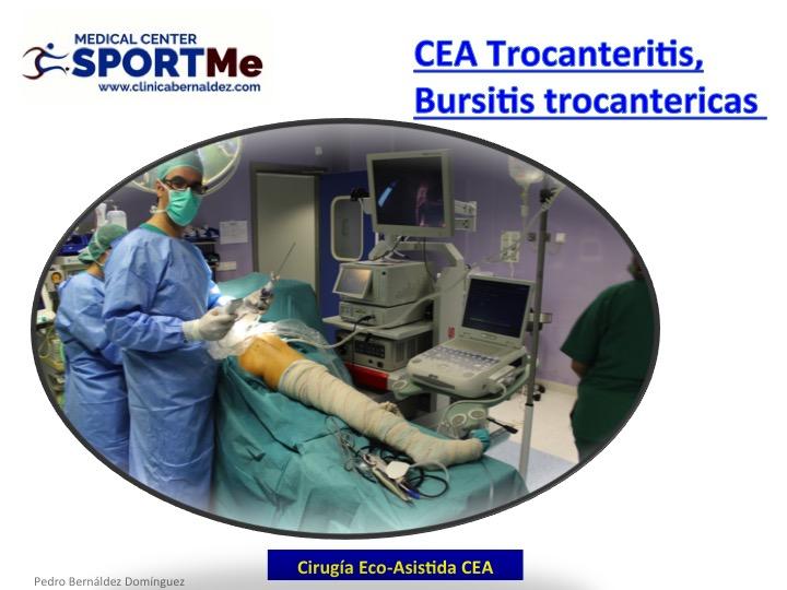 Endoscopia asistida por Ecografia (EAE) . Endoscopy Ultrasound-Assisted (EUA)