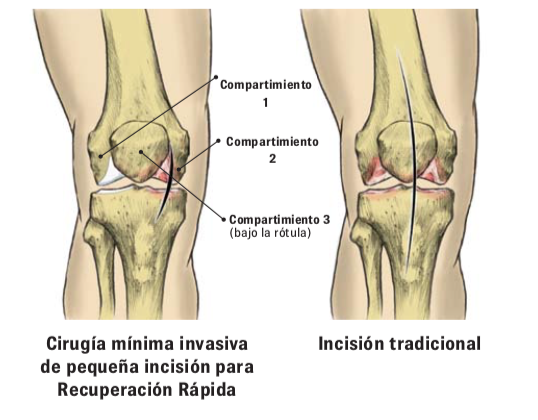 Protesis unicompartimental de rodilla SportMe...
