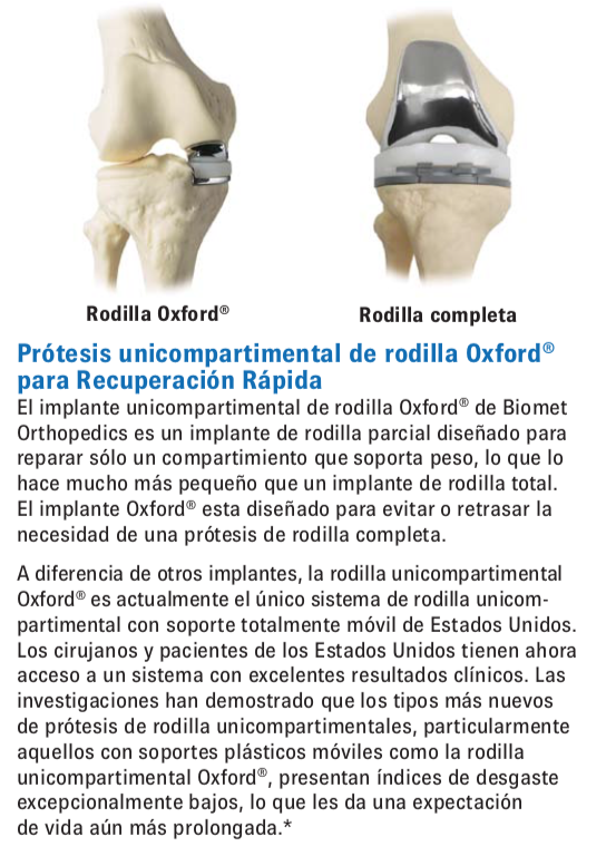 Protesis unicompartimental de rodilla SportMe..