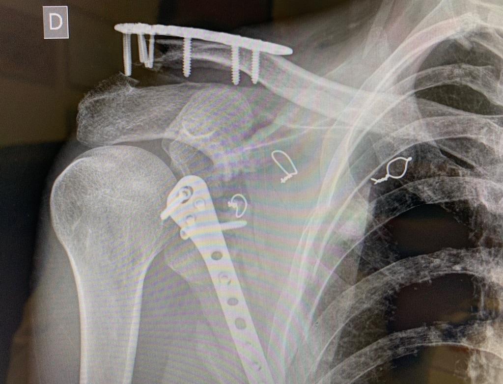 Fractura de clavicula y escapula: El hombro flotante.Diagnóstico y Tratamiento