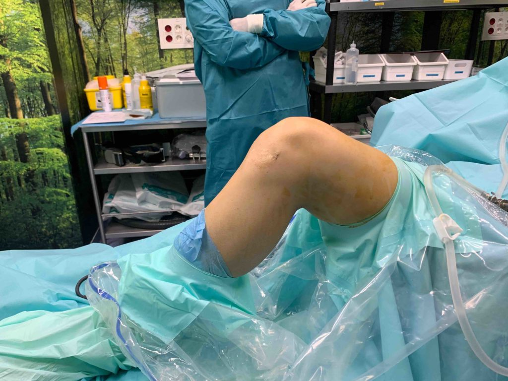 aspecto rodilla tras reanclar LCA