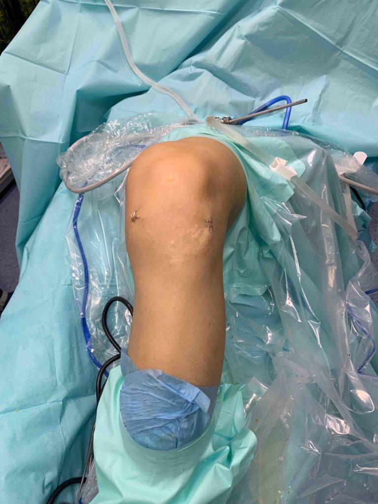 10 Ventajas de Reanclar el Ligamento Cruzado Anterior (LCA) versus una Ligamentoplastia.