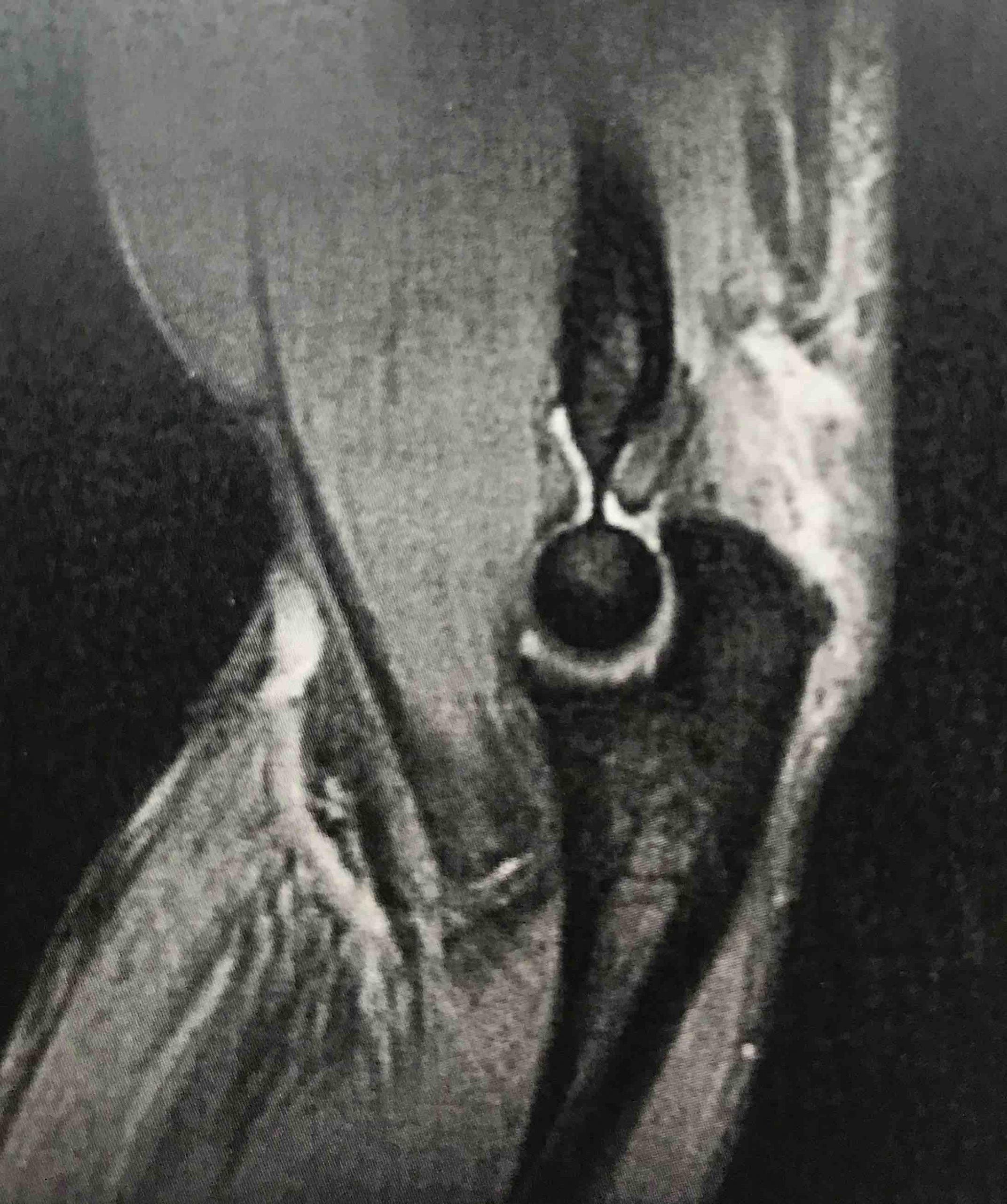RM Rotura del tríceps braquial Sevilla