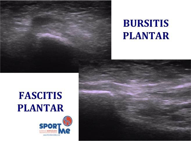 Ecografia Fascitis plantar y bursitis Sportme