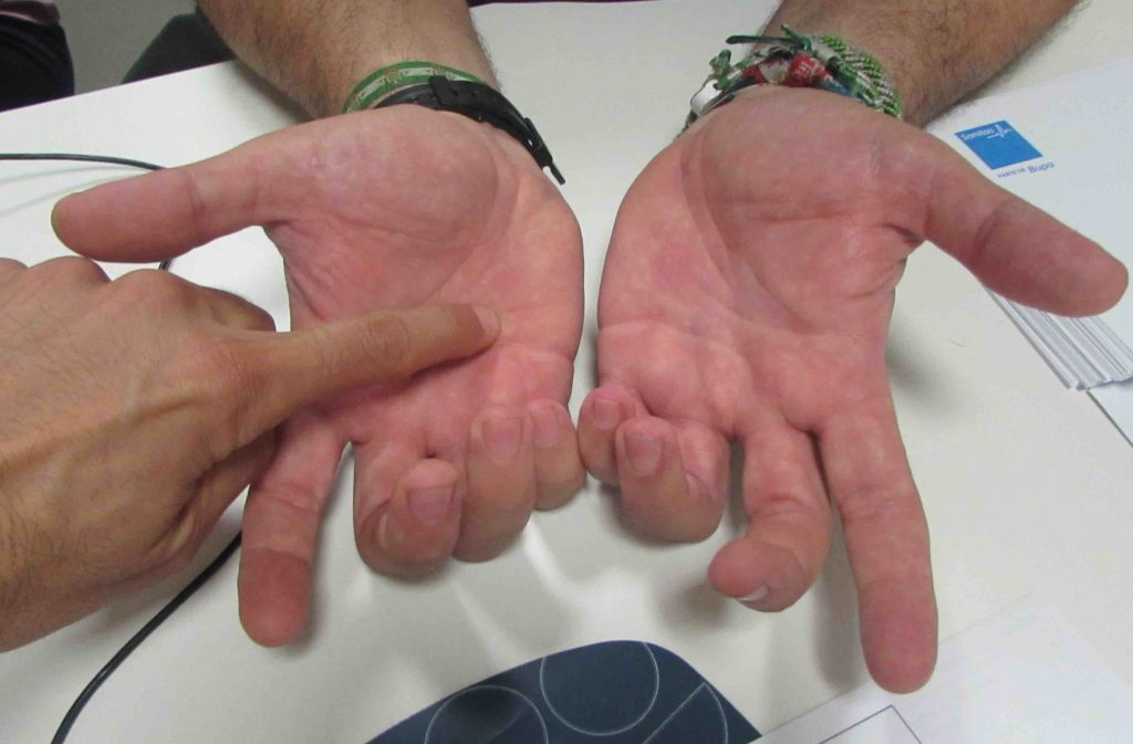 Enfermedad de Dupuytren manos
