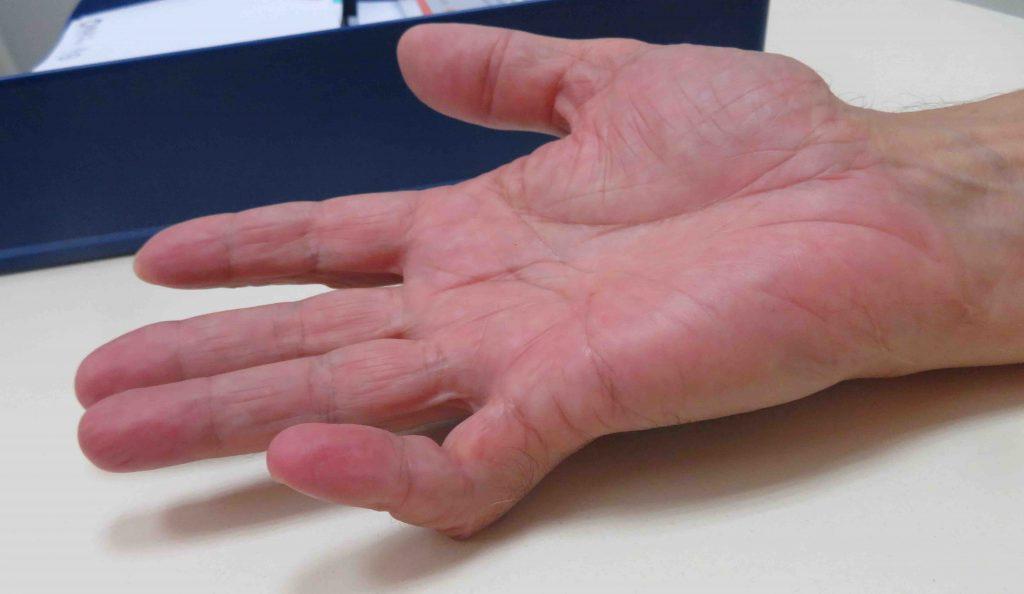 Enfermedad de Dupuytren 5º dedo