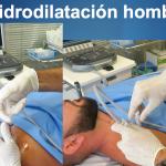 Fig.6. Procedimiento de Hidrodilatación hombro derecho