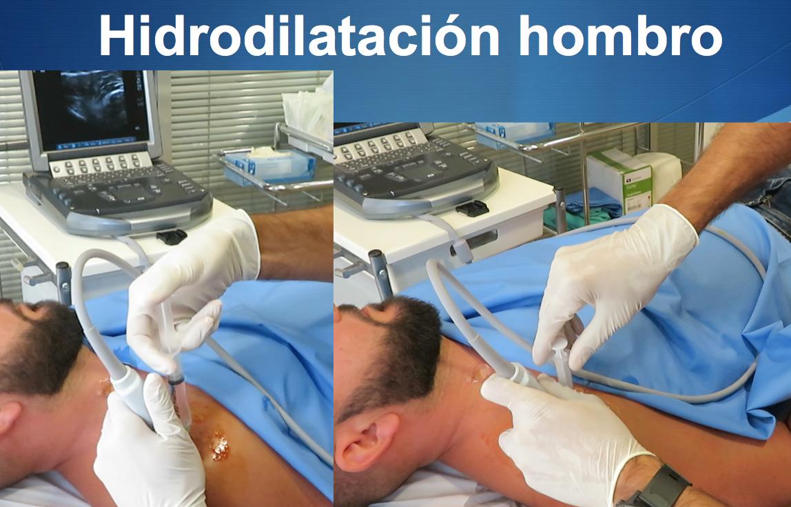 """Terapias Ecoguiadas en Traumatología: ver lo que hacemos y como lo tratamos """" Nueva publicación del doctor Pedro Bernaldez"""