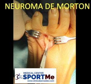 NEUROMA DE MORTON SPORTME