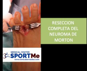 RESECCION COMPLETA NEUROMA DE MORTON SPORTME