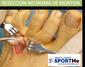 RESECCION NEUROMA DE MORTON SPORTME