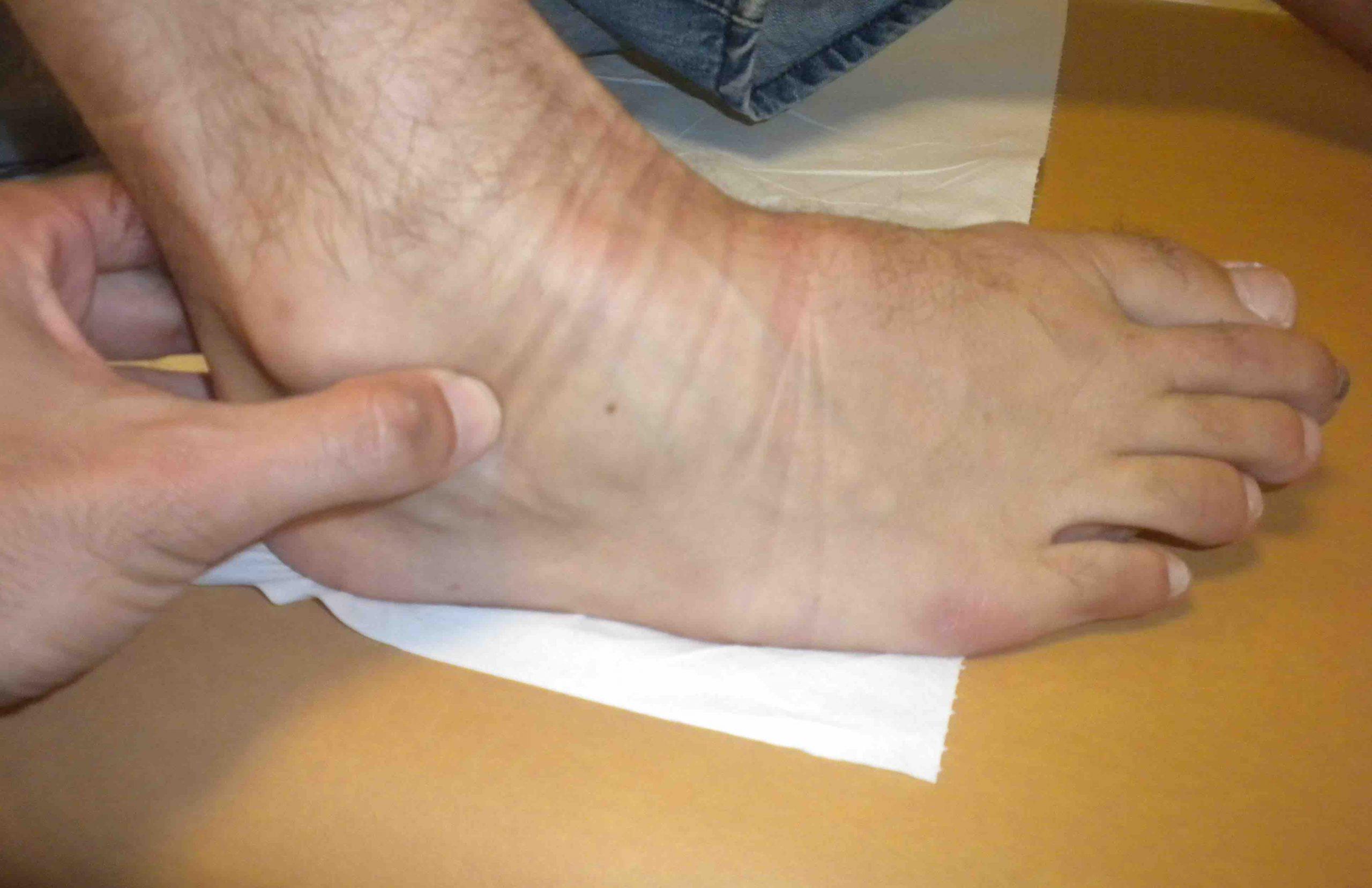 clinica SENO DEL TARSO scaled