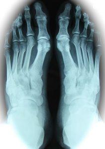 Enfermedad de haglund y tend calcificante Aquiles